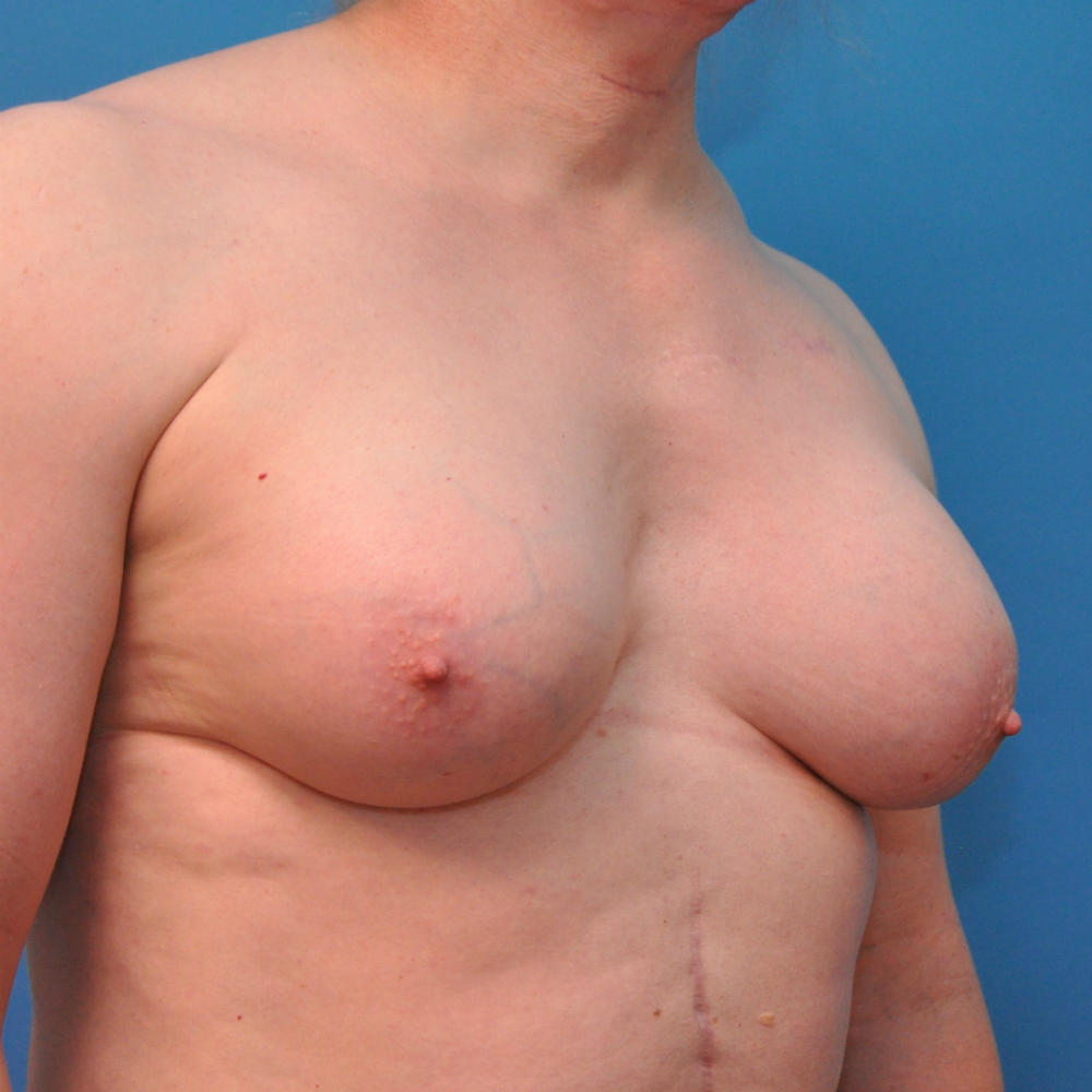 Transgender Breast Augmentation Male to Female Breast