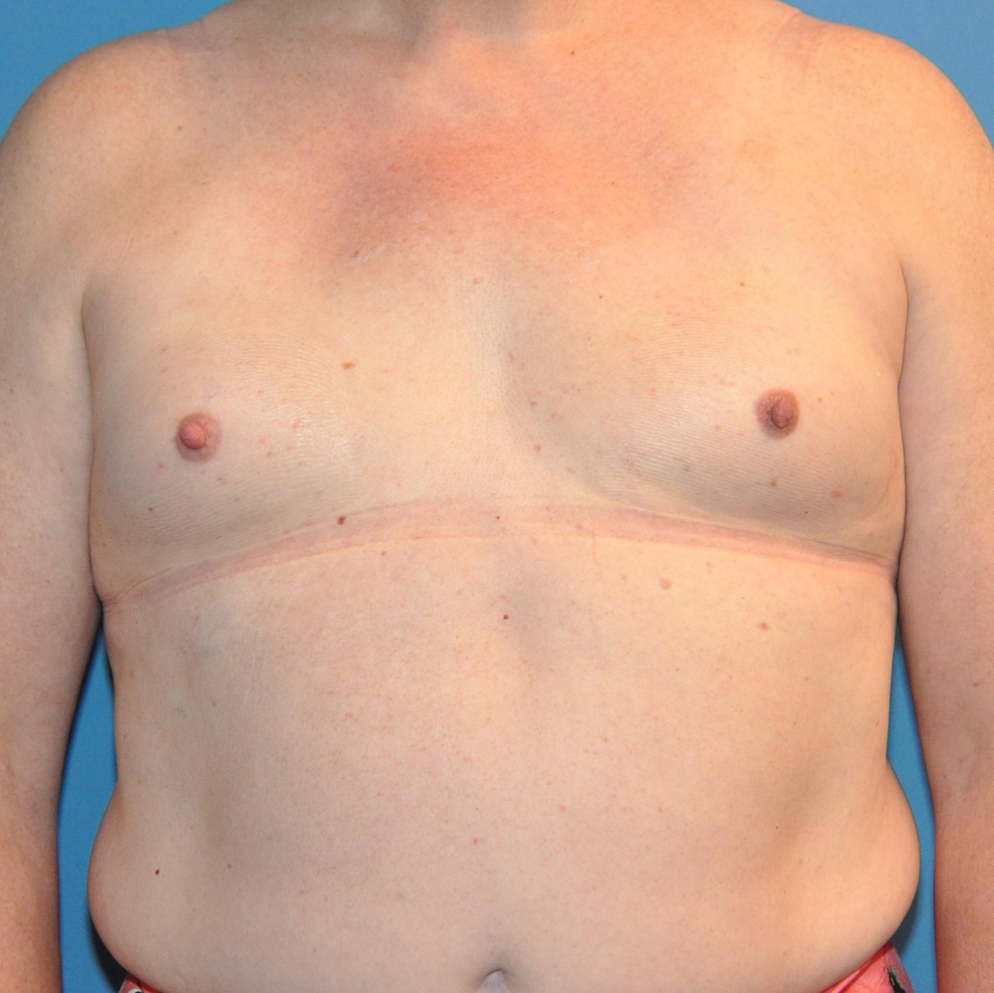 breast augmentation male