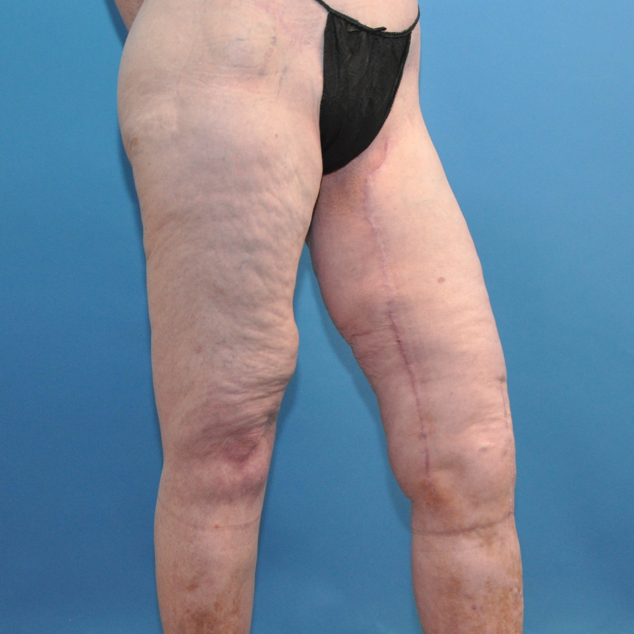 Gallery - Thigh Lift Surgery | Dr. Cooper