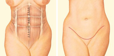 tummy-tuck-incision-front-abdomen-sutures.jpg