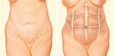 tummy-tuck-incision-front-abdomen.jpg